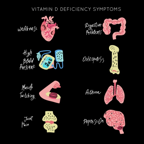 VitaminD Deficiency vector